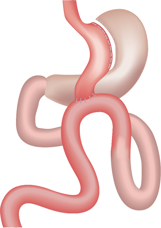 "Gastric bypass for weight loss diagram showing the reduce stomach ""pouch"" and re-routed intestine."